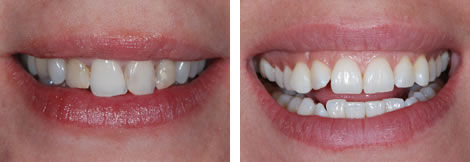 Image showing crooked teeth before and after dental treatment