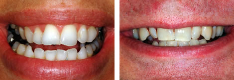 Before and after image of crooked teeth
