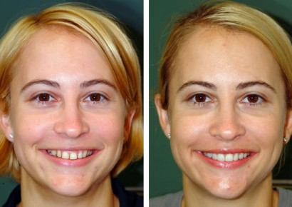 Smile makeover patient 1