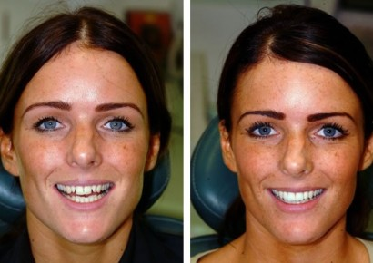 Smile makeover patient 5