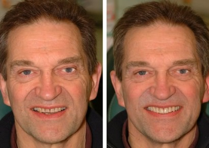 Smile makeover patient 4