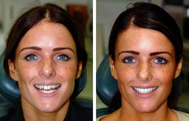 Smile Makeover Images of our London Patients