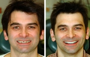 Smile makeover patient before and after tooth restoration