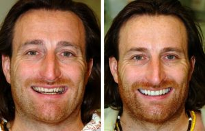 Smile makeover patient 10