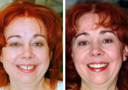 Smile makeover patient 3