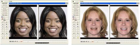 digitalImagingBefore2