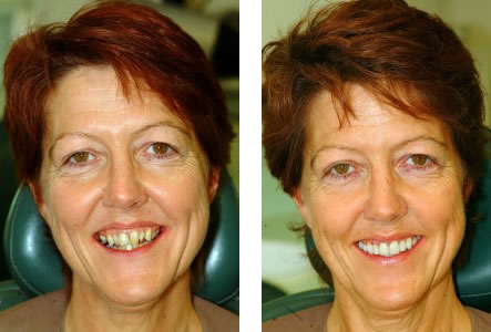 Enhance your smile with a smile makeover in one day