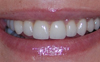 cosmetic dentistry london