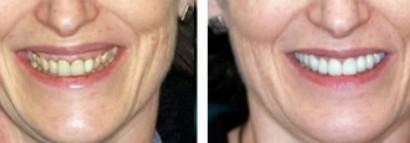 teeth aging