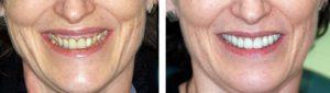 Signs of ageing teeth