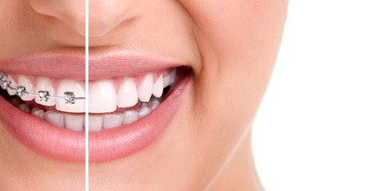 Shwoing a healthy smile with orthodontics