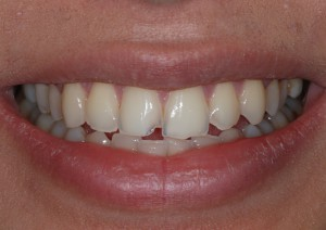 What's a smile worth - image pre smile makeover
