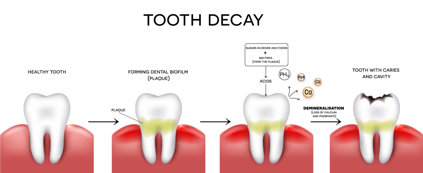 Tooth Decay diargam