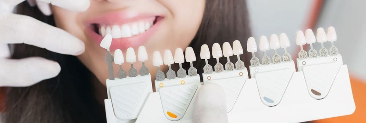 Dental veneers for use in smile makeovers