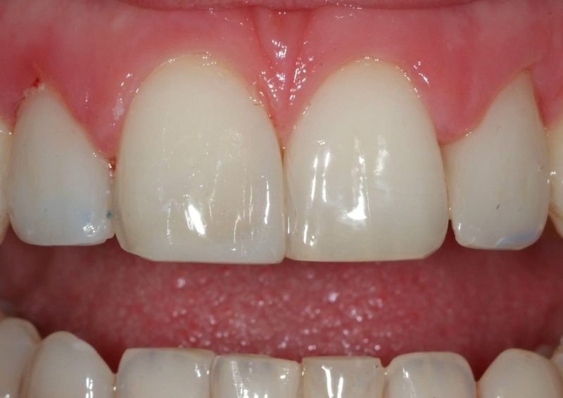 Discoloured teeth - after