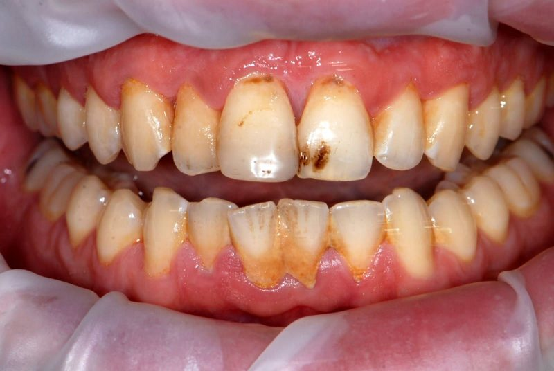 Inflamed gums - before