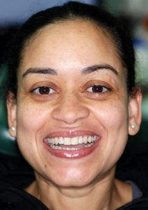 Young woman after a smile makeover